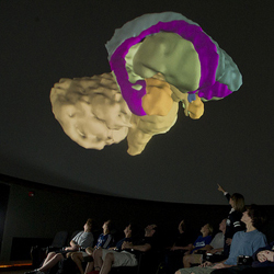 Students view images of the brain in the DVT